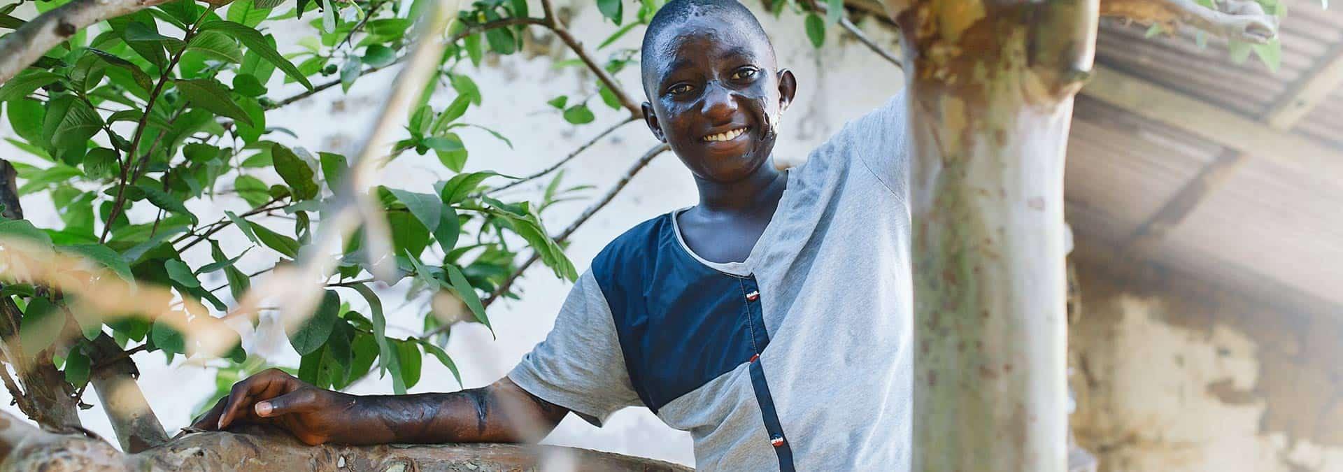 Paul Bernard kann nach seiner plastischen OP seinen Arm endlich wieder bewegen und sogar auf Bäume klettern